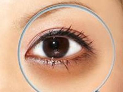 黑眼圈的形成原因?消除方法这几招